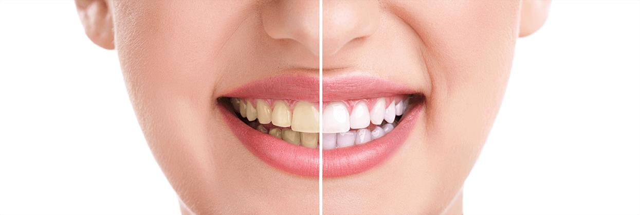 teeth whitening background
